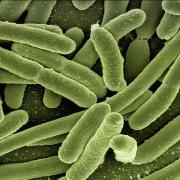 Vista a microscopio de la bacteria que causa la listeria