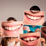 Salud dental sonrisa