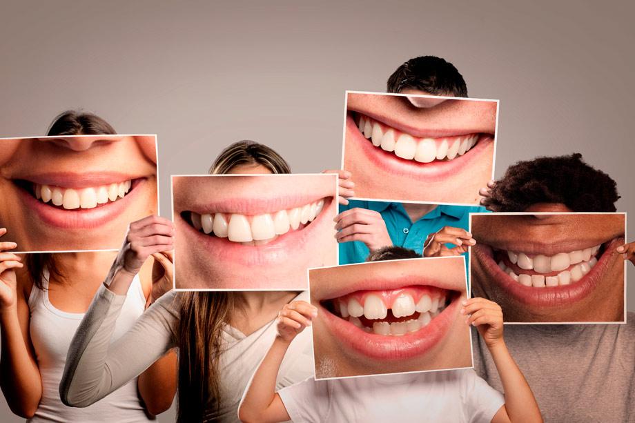 dientes y bocas