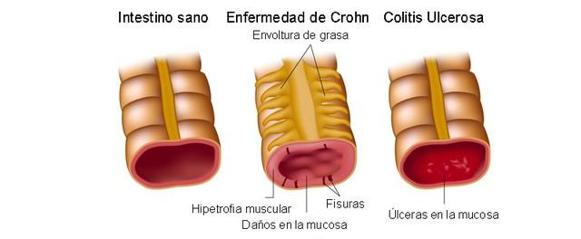 infografia sobre como afecta al colon la enfermedad de crohn