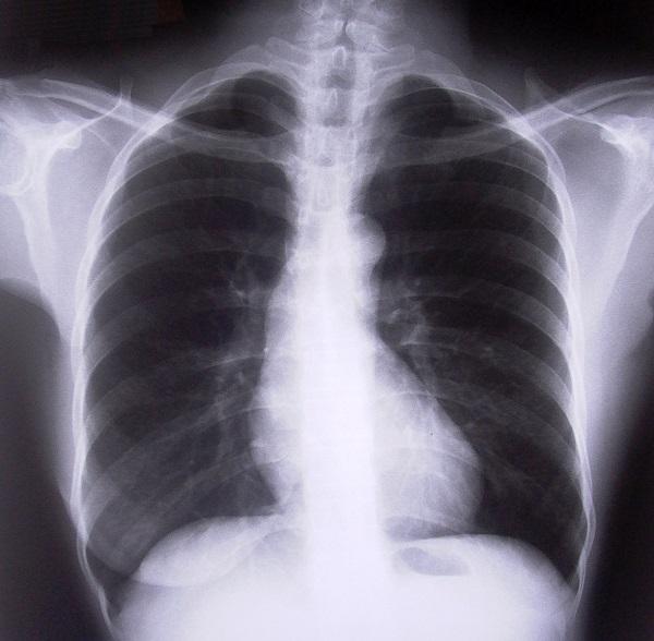 efectos del covid en los pulmones