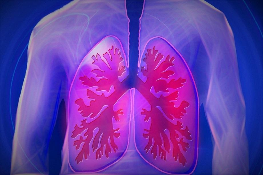 pulmones, neumonía