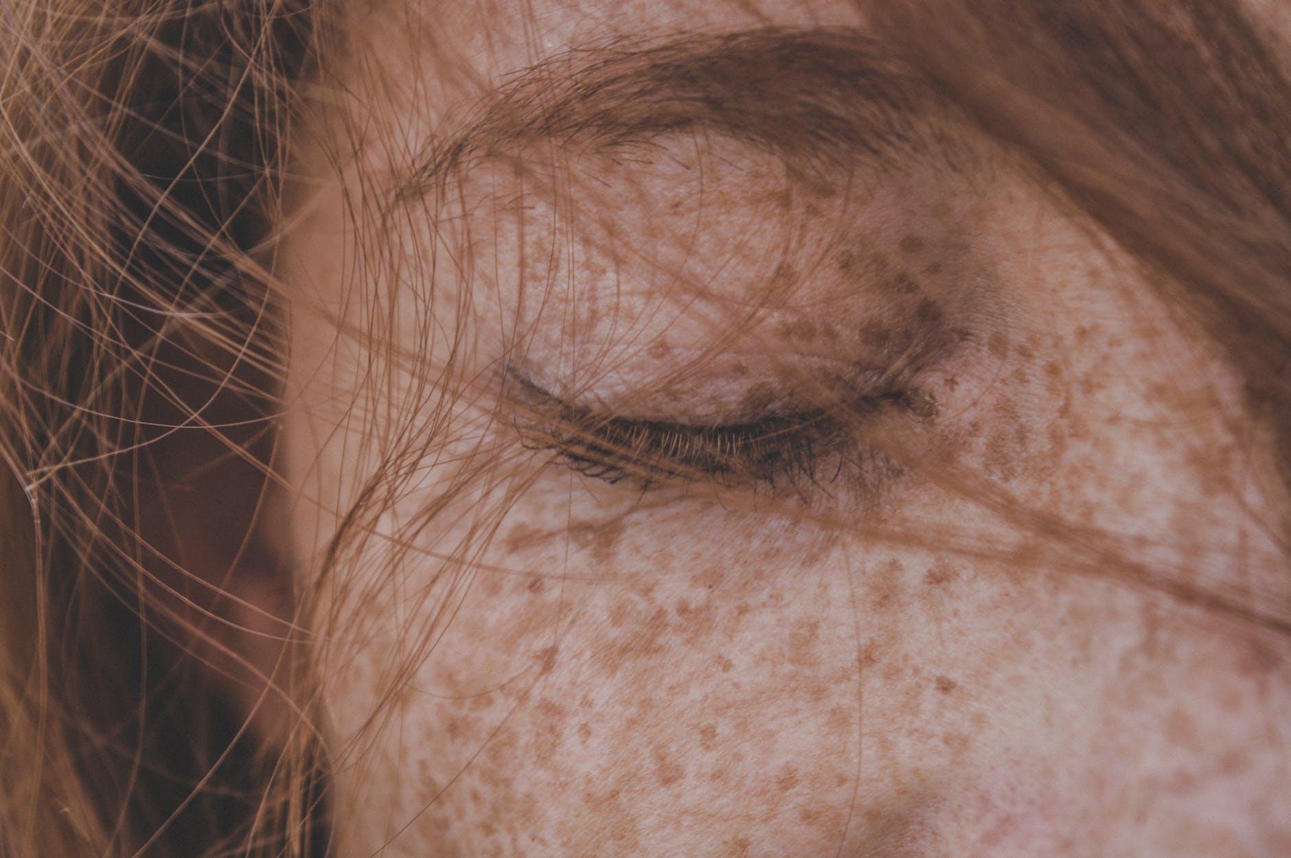 varios tipos de alergia al sol producen manchas