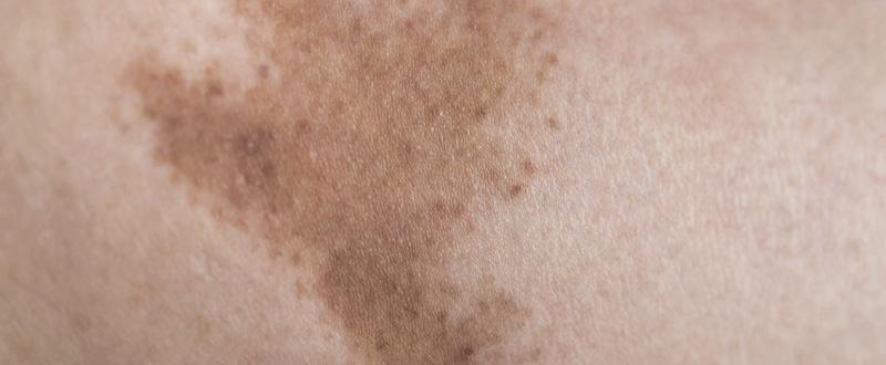 manchas de sol
