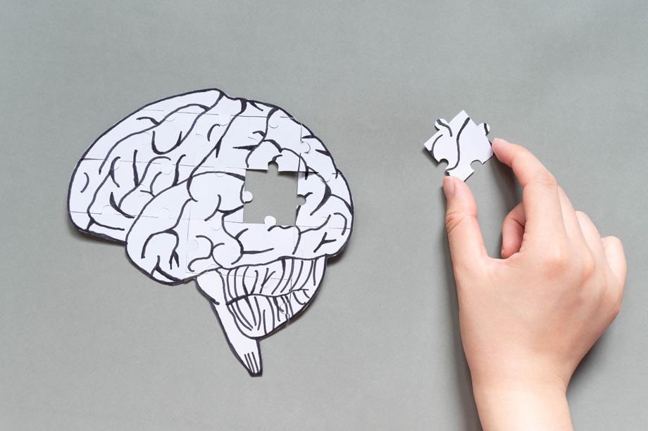 cerebro demencia