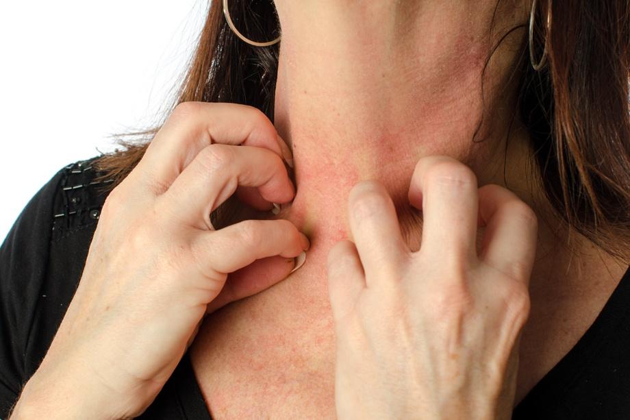 dermatitis atíopica