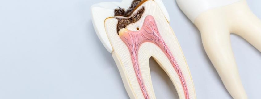 diente dañado necesidad hacer endodoncia