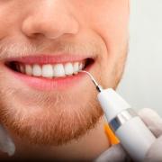 sarro dientes eliminar
