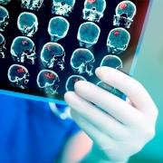 radiografía cerebro ictus